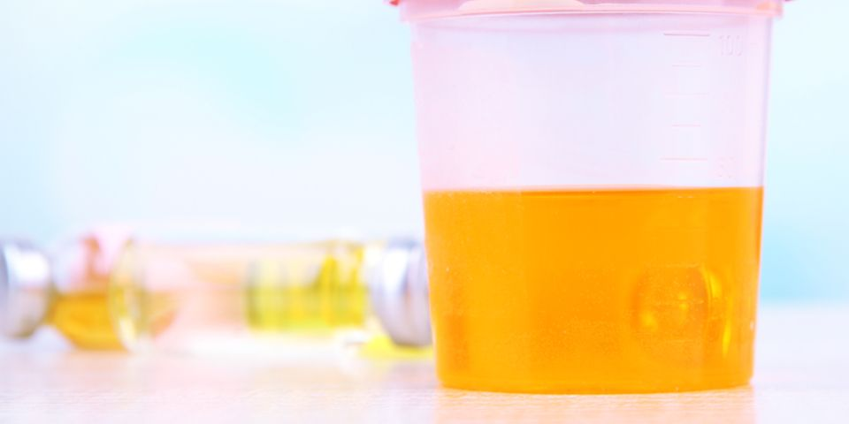 Does Synthetic Urine Expire?